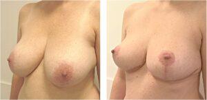 zij aanzicht borstverkleining kingma