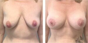 voor en na foto benelli borstlift met prothesen