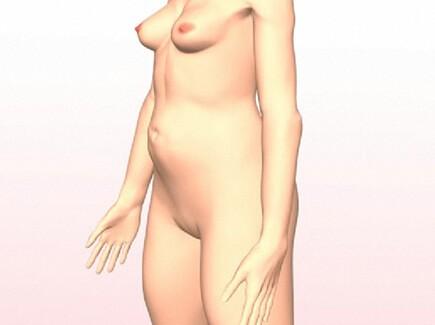 Animatie liposuctie