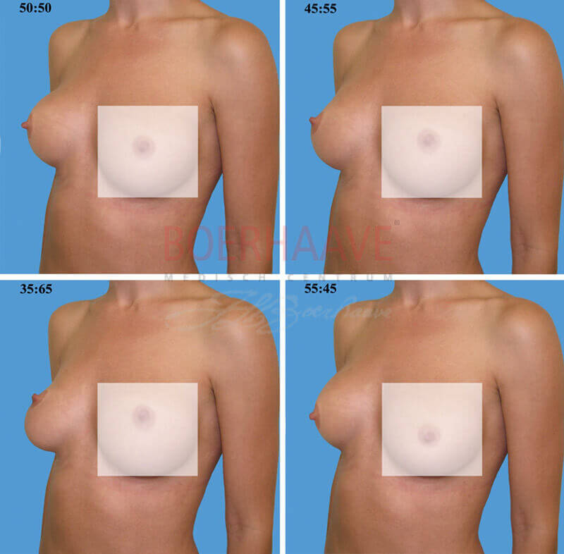 Onderzoek : De mooiste borst