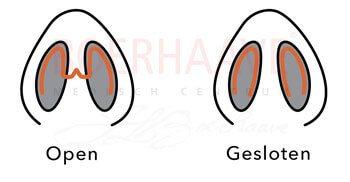 rhinoplastiek operatie open of gesloten