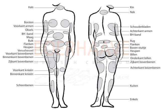 zones liposuctie boerhaave