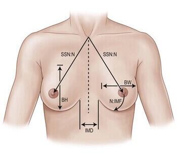 hoe krijg ik vollere borsten