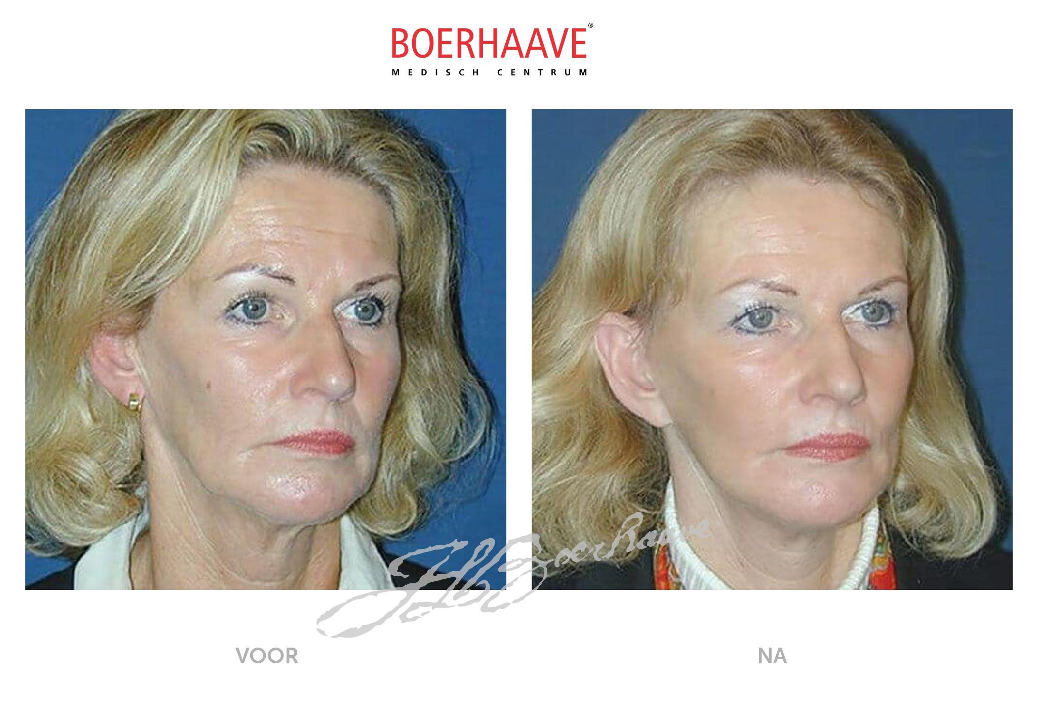 Voor na foto van facelift behandeling