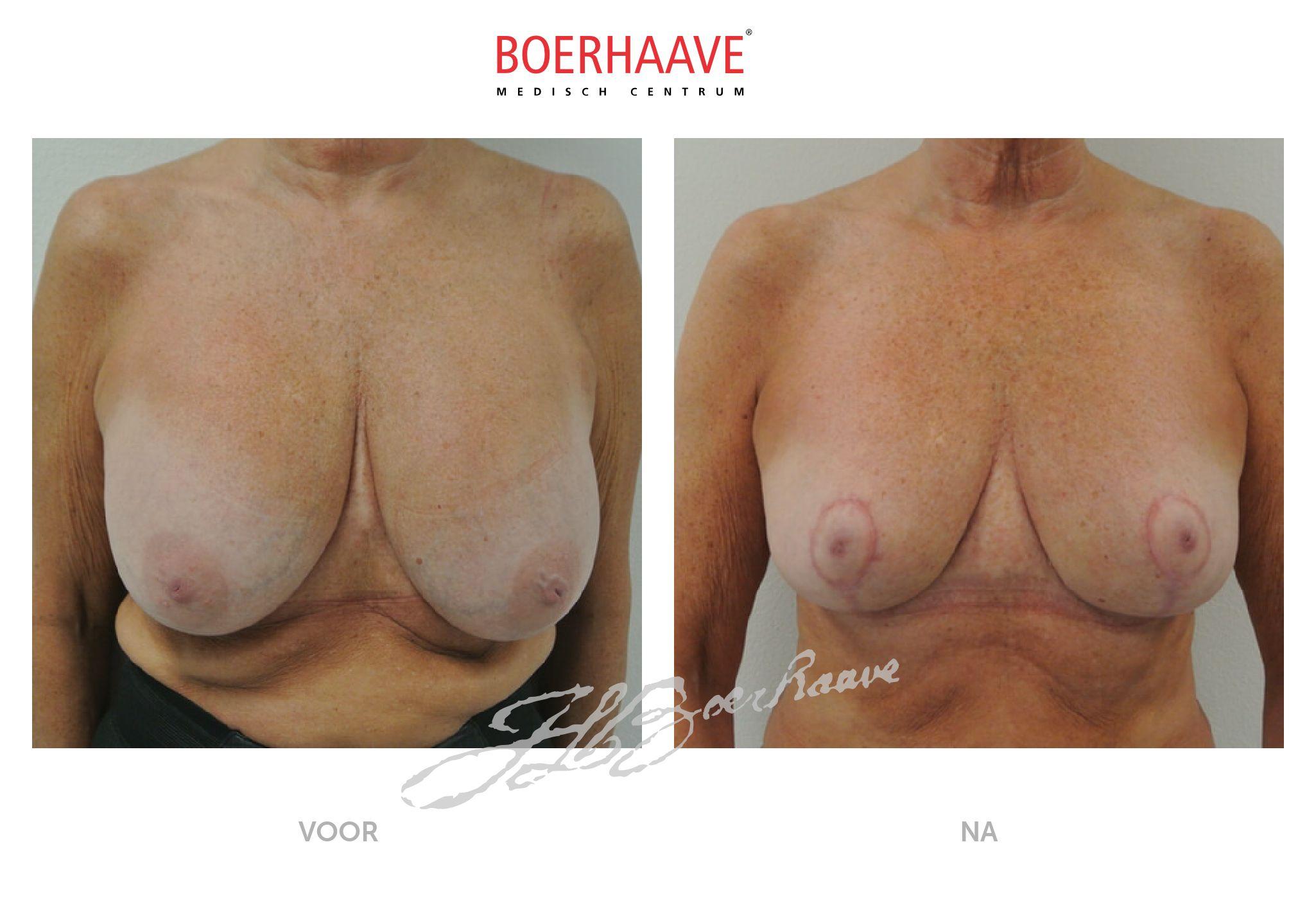 Voor na foto van prothesen en kapselvorming verwijderen behandeling
