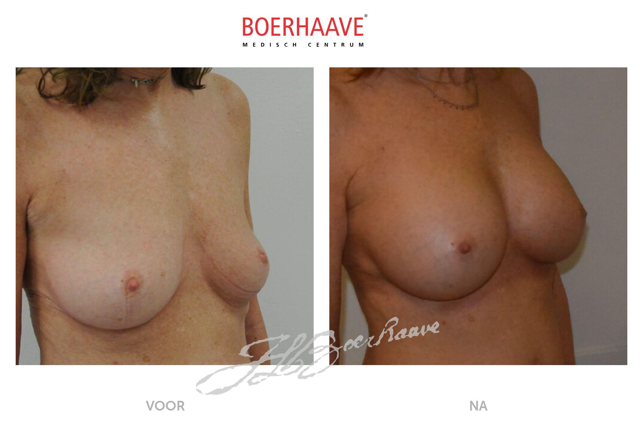 Voor na foto van borstvergroting behandeling