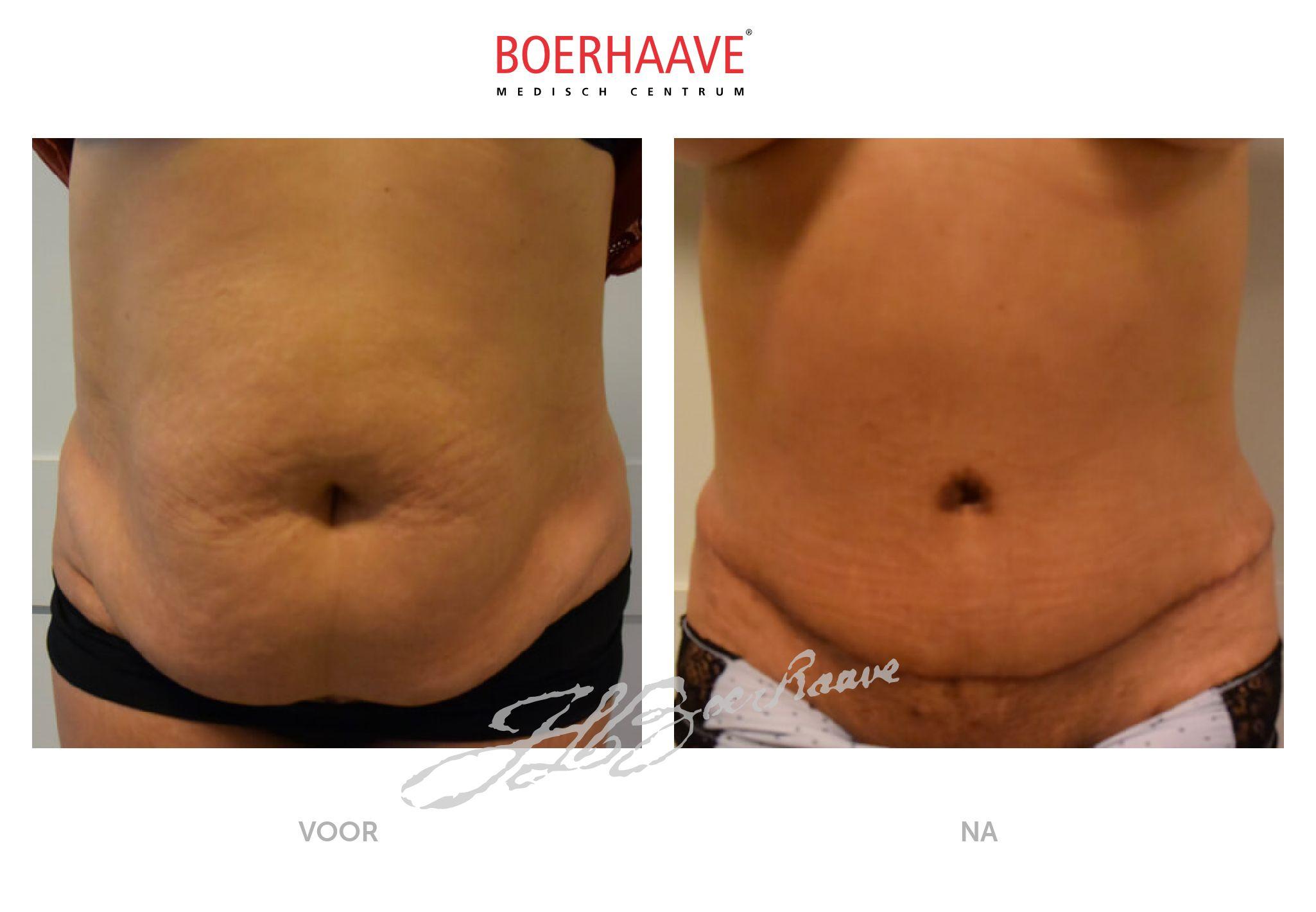 Voor na foto van buikwandcorrectie en liposuctie maag behandeling