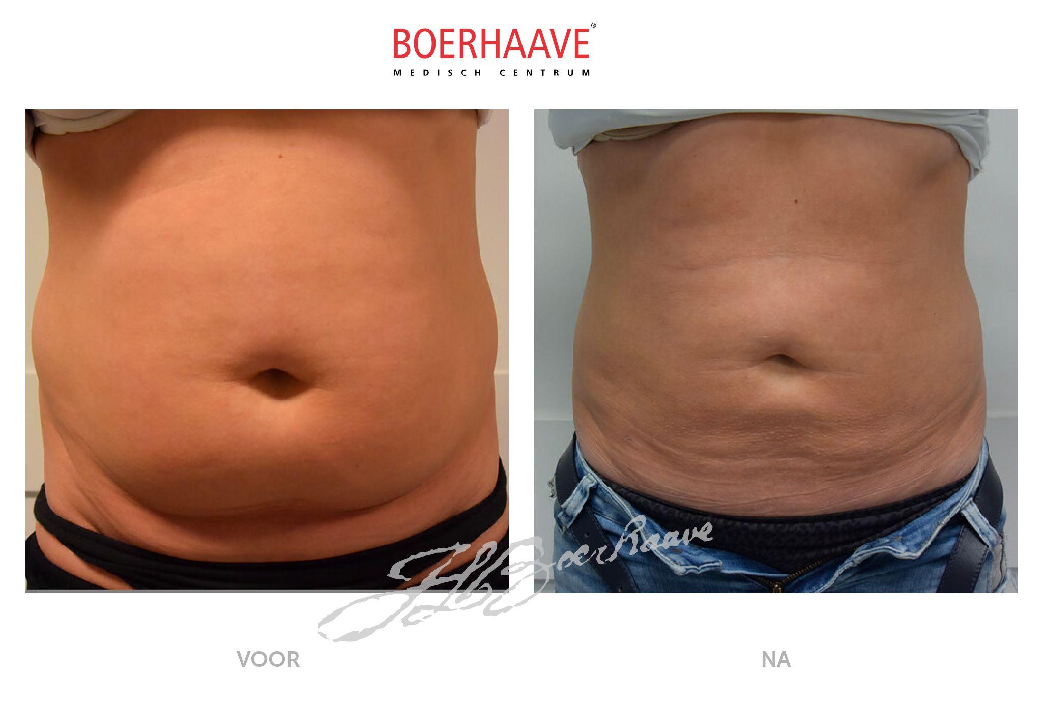 Voor na foto van liposuctie buik en maag behandeling