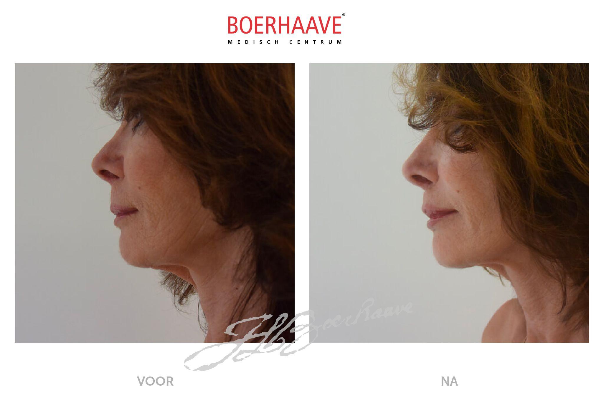 Voor na foto van face-halslift behandeling