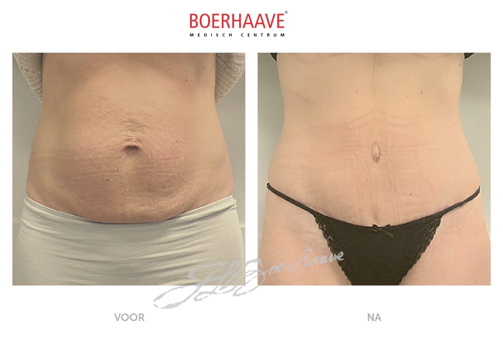 Voor na foto van buikwandcorrectie en liposuctie flanken behandeling