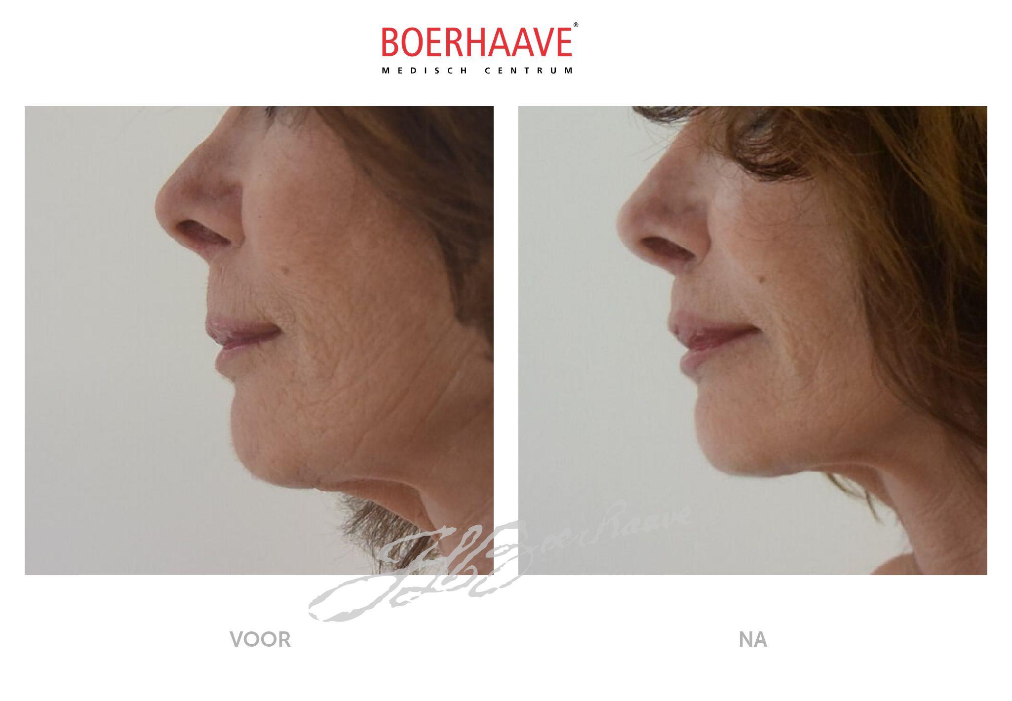 Voor na foto van lipcorrectie behandeling