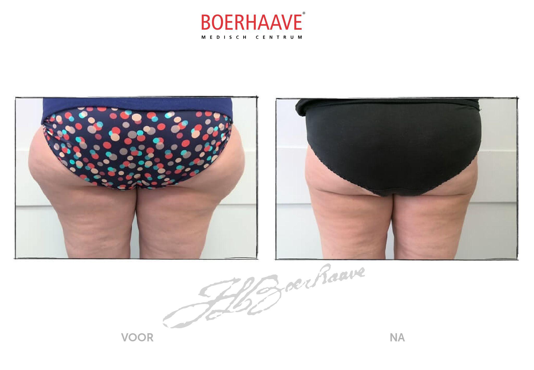 Voor na foto van liposuctie behandeling