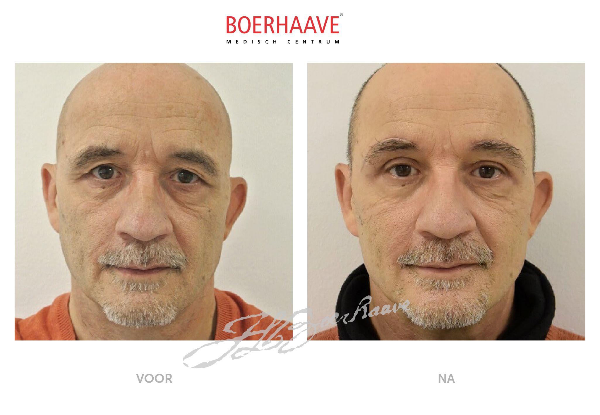 Voor na foto van ooglidcorrectie en wenkbrauwlift behandeling