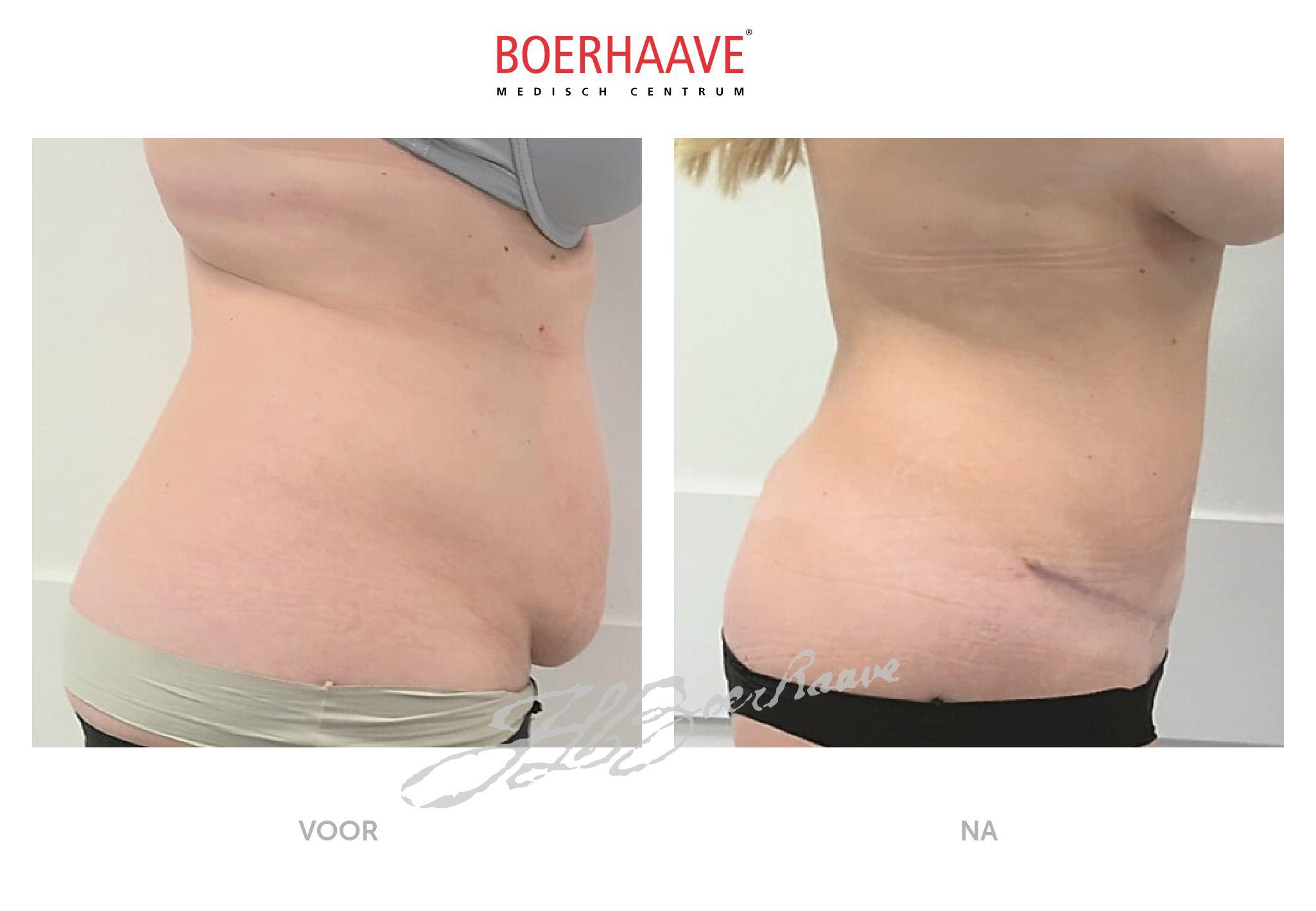 Voor na foto van buikwandcorrectie en liposuctie behandeling